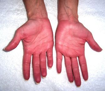 Waht the Palm of Your Hands Shows Regarding YOur Health