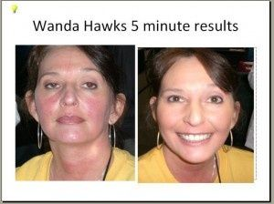 Rodan + Fields SOOTHE Results Before and After in just 5 minutes! Take a look and re-pin so others know they can have these results, too!