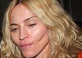 Madonna's Cheek Implants