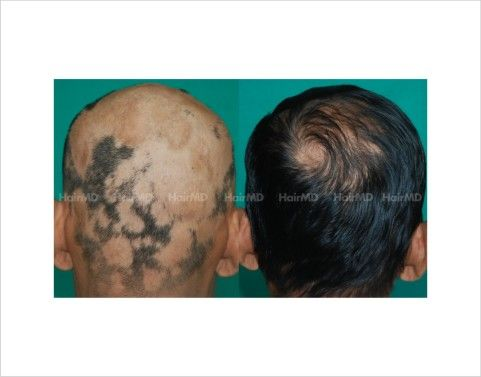 Bald patches on head of the male before after results