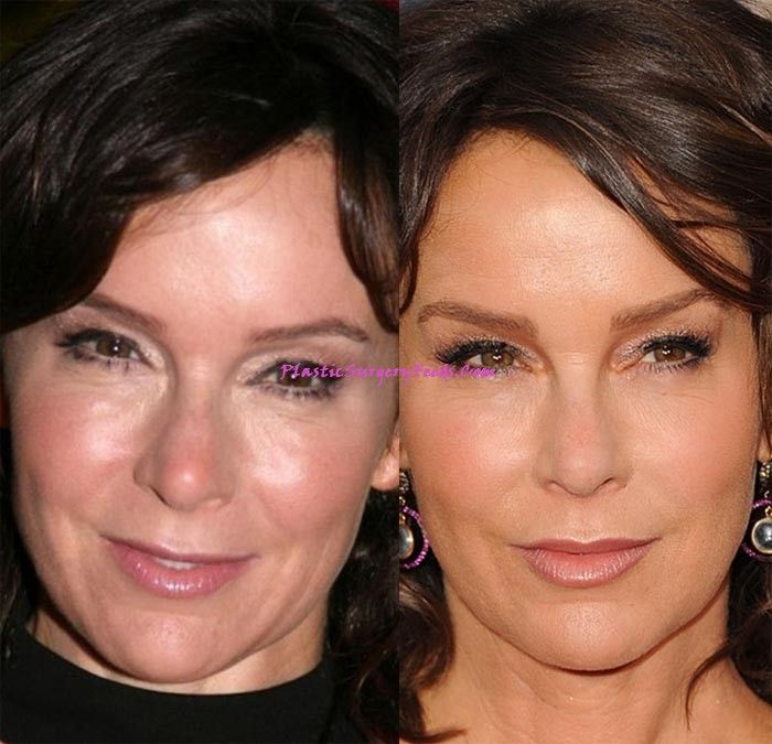 Jennifer Grey Plastic Surgery Before and After face