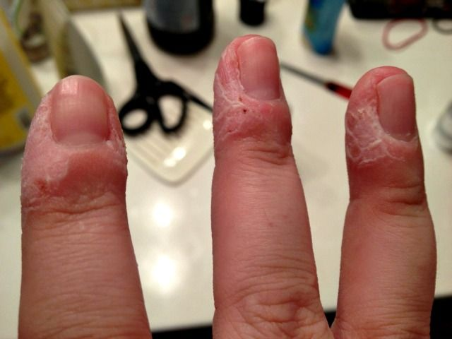 Skin Peeling Around Ring Finger