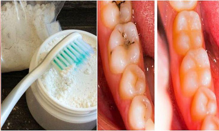 Si quieres probar una forma muy efectiva para curar tus caries sin necesidad de ir al dentista, esta receta es perfecta para tí, pues, además de curar las caries, blanqueara tus dientes. Sigue paso a paso lo que te indicamos a continuación para que tenga el efecto deseado. No es nada complicado, sin embargo debes ser constante y no saltarte ningún paso. Toma nota. Remedio para curar las caries y blanquear tus dientes Debes seguir las siguientes instrucciones: Ingiere vitamina D3 y K2, puede…