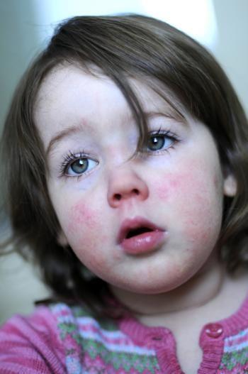 Fiebre escarlatina: causas, síntomas y cómo se puede prevenir
