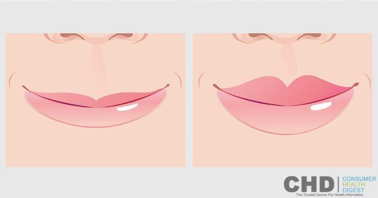 Thin Lips: Ways to Plump Up Thin Lips