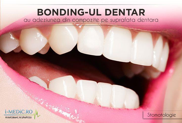 Bonding-ul dentar reprezinta un proces prin care la nivelul dintelui este aplicat un material de plastic (material rasinos compozit) in vederea repararii suprafetei acestuia. http://www.i-medic.ro/stomatologie/bonding-ul-dentar-sau-adeziunea-din-compozite-pe-suprafata-dentara