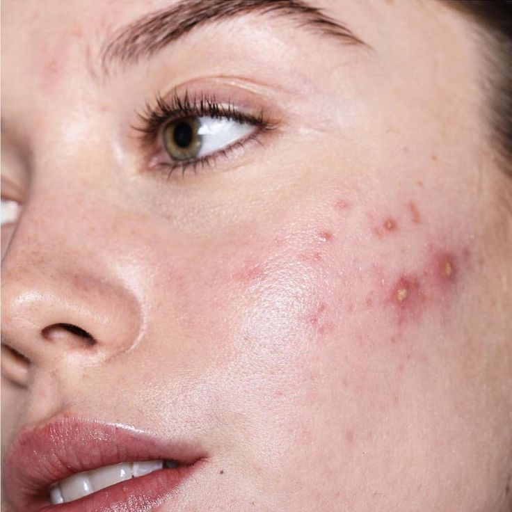 My acne products aren't working! We may have the answer why. My acne products aren't working! We may have the answer why. My acne products aren't working! We may have the answer why. Acne Skin, Acne Scars, Oily Skin, Acne Face, Body Acne, Crepy Skin, Girl With Acne, Face Mapping, Acne Causes