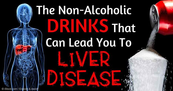 Is A Person Who Drinks Everyday An Alcoholic