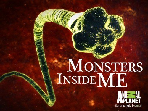 Ready to be Grossed Out Tonight?? Tune in to 'Monsters Inside Me!' | Florida Eye Microsurgical Institute