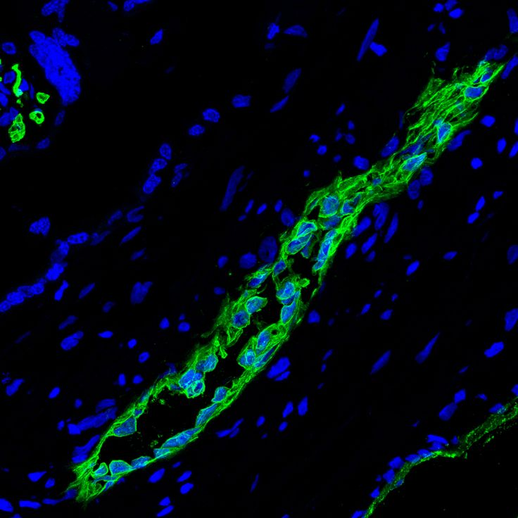 Two in one: human placenta stem cells hold a dual benefit