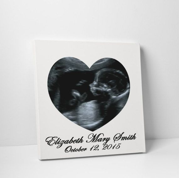 Baby Ultrasound Custom Designed & Professional Canvas Print. Get Your Own Photographs Custom Designed With Your Own Text & Professionally…