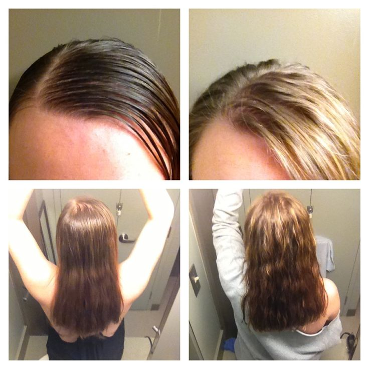 Kết quả hình ảnh cho hair before and after using baking soda