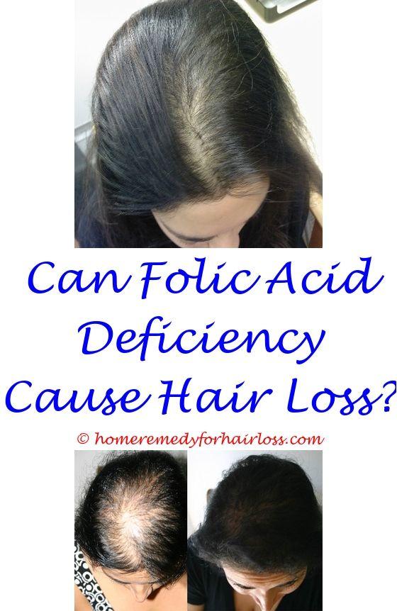 17 best Hair Loss Medication images on Pinterest