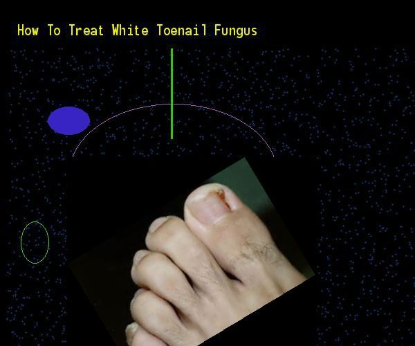 How to treat white toenail fungus  Nail Fungus Remedy. You have nothing to lose