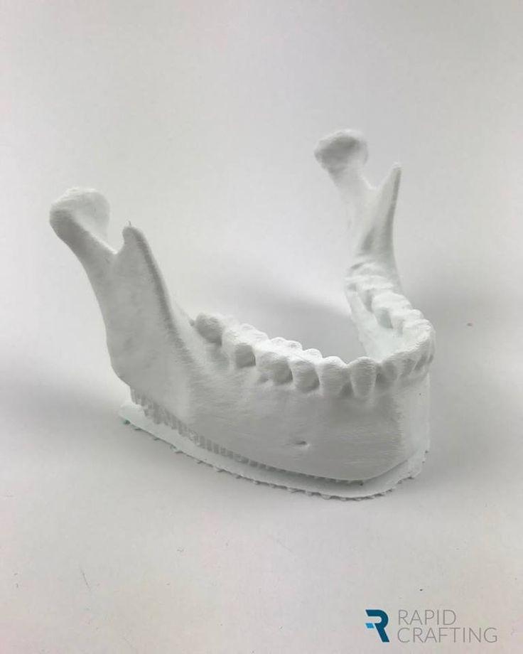 3D printed mandible