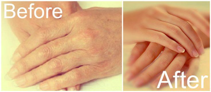 Η γήρανση είναι μια φυσική διαδικασία γιατο ανθρώπινο σώμα. Παρά το γεγονός ότι είναι απολύτως φυσιολογικό φαινόμενο, τα σημάδια της δεν είναι ποτέ ευπρόσδεκτα.        Εκτός από το πρόσωπό σας, έναμέρος στο σώμα σας που δείχνει τα