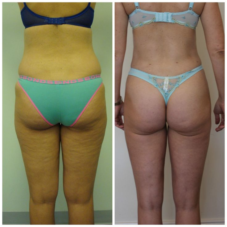 Dr Rastogi Sydney patient, 40 year old mother of one had Liposculpture to her abdomen, waist, hips, inner & outer thighs, mid back and arms. Cosmetic Surgeon Dr Rastogi created a beautiful curved physique. Contact us today to see how we can help you. Ph: 0405 439 908