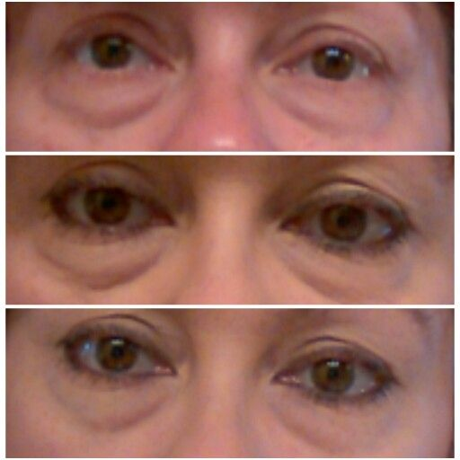 Top picture is makeup free and no Instantly Ageless applied. Middle picture is makeup on and no Instantly Ageless applied. Third picture is 2 minutes after applying Instantly Ageless over my makeup. Contact me for more info. :). http://marketbolt.com/jns/site/?id=instantlyagelesscc