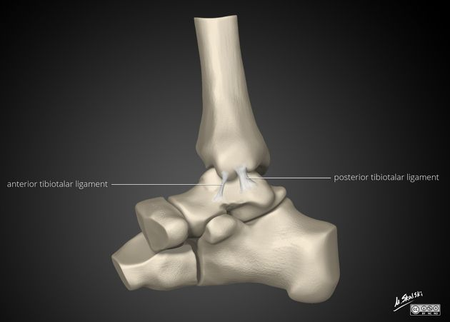 The deltoid ligament or medial collateral ligament of the ankle forms the medial part of the ankle joint. It attaches the medial malleolus to multiple tarsal bones.   deep layer: this layer is intra-articular and is covered by synovium anterior tibiotalar ligament (ATTL)  posterior deep tibiotalar ligament (PDTL)  http://radiopaedia.org/articles/deltoid-ligament-of-the-ankle-1
