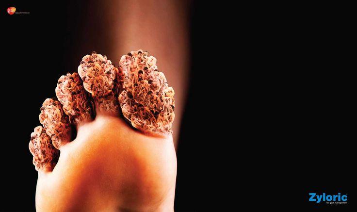 Zyloric: Feet