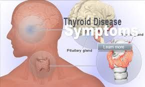 Signs And Symptoms of Thyroid