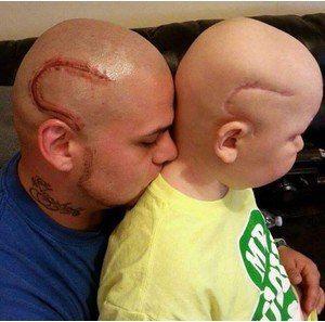 Один шрам на двоих: отец сделал тату в поддержку сына Ксения Краснова Вот она, настоящая отцовская любовь. Чтобы сын не чувствовал стеснение и не комплексовал по поводу большого шрама на голове, папа сделал себе такой же шрам, но в виде татуировки.