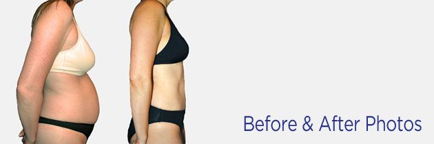 Breast Enlargement Surgery Aa To C 100