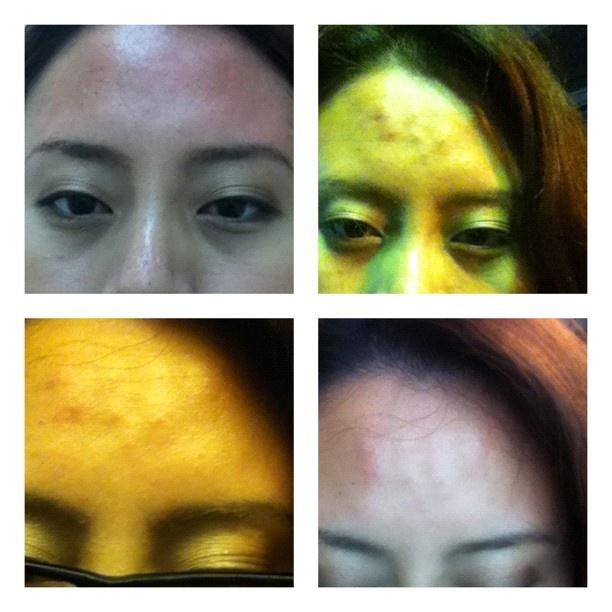 ซื้อดีล Botox รอบตาไว้ แต่หมอบอกว่า ริ้วรอยหน้าผาก แย่กว่า เลยจัดหน้าผากให้ คุ้มสุดๆ  #scclinic ซื้อดีล Botox รอบตาไว้ แต่หมอบอกว่า ริ้วรอยหน้าผาก แย่กว่า เลยจัดหน้าผากให้ คุ้มสุดๆ  #scclinic: ซอดล Botox