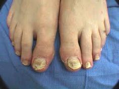 Natural Cure for Toenail Fungus. Toenail fungus is a very common disease of the foot nails. Click here to find out a simple and natural cure for toenail fungus, as well as other natural treatments for tired foot and regular foot care.