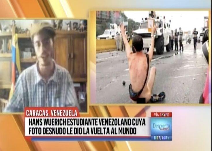 En Exclusiva Para Despierta America Hans Wuerich, El Venezolano Que Protestó Desnudo Contra La Dictadura : 'Lo Que Yo Quería Era Hacer Llegar Mi Mensaje'