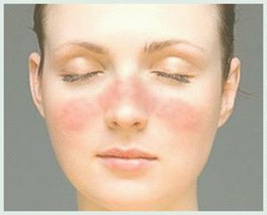 Staphylococcus aureus dans la gorge: symptômes et traitement