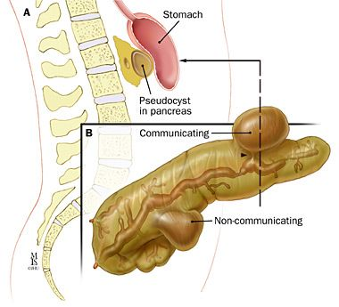 Acute Pancreatitis: Therapy