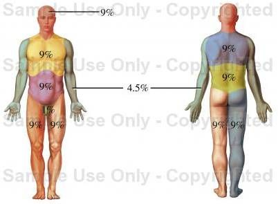 Rule of Nines for burn patients  You can estimate the body surface area on an adult that has been burned by using multiples of 9.    An adult who has been burned, the percent of the body involved can be calculated as follows:    Head = 9%  Chest (front) = 9%  Abdomen (front) = 9%  Upper/mid/low back and buttocks = 18%  Each arm = 9% (front = 4.5%, back = 4.5%)  Groin = 1%  Each leg = 18% total (front = 9%, back = 9%)