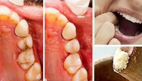 Heal Tooth Cavities Yourself and Relieve Pain Quickly at Home