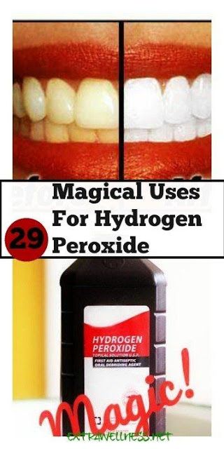 29 Magical DIY Uses For Hydrogen Peroxide   Workout Craze
