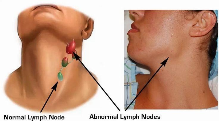 Benjolan di leher kiri bawah rahang menghadirkan rasa sakit ketika menunduk. Sebaiknya istirahat di rumah, libur dulu dari segala aktifitas.