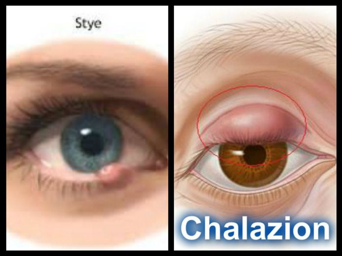 Stye VS Chalazion--A stye is an infection of an oil gland in the eyelid. It produces a red, swollen, painful lump on the edge or inside surface of the eyelid. Styes usually occur closer to the surface of the eyelid than do chalazia.  A chalazion is generally not due to an infection, but results from a blockage of the oil gland itself. However, a chalazion may occur as an after-effect of a stye. Most chalazia disappear without treatment in several weeks to a month. However, they often recur.