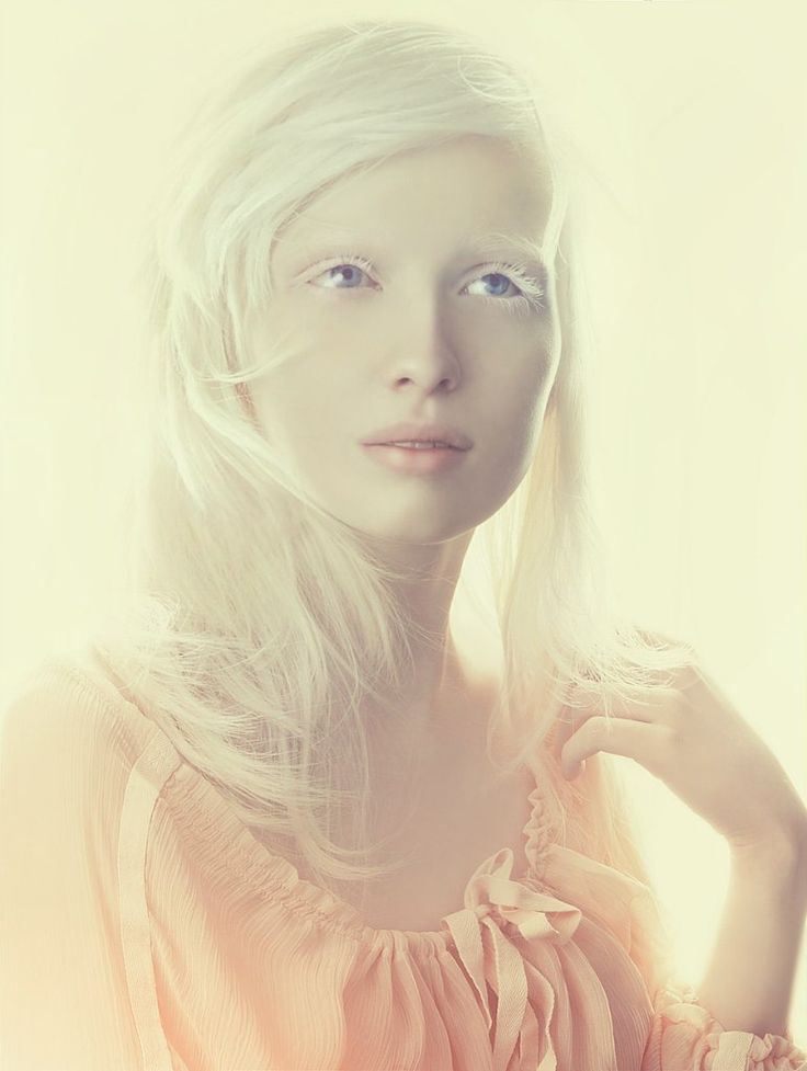 True albino beauties — photo 7