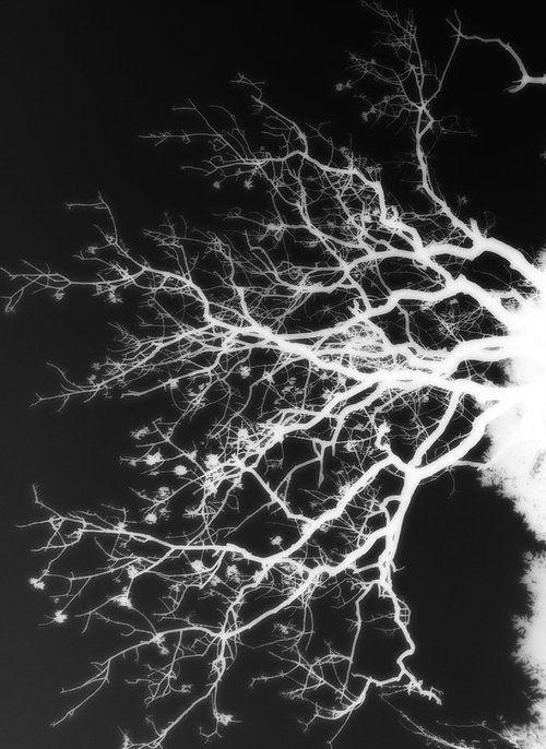 Dendrite in the Human Brain | microscope # cerebellum # neurons