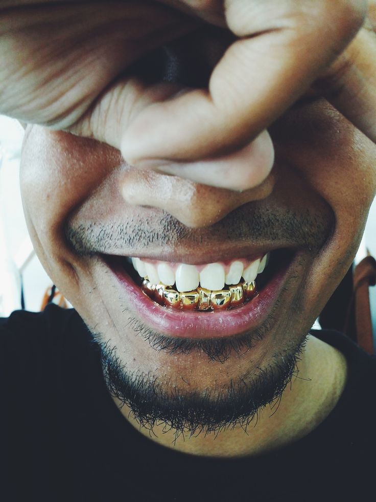 1000 Images About Gold Teeth On Pinterest: 1000+ Images About