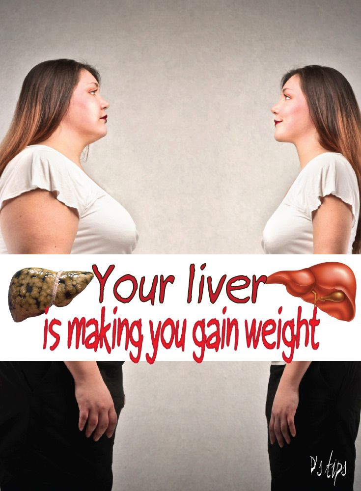 fatty liver stops weight loss