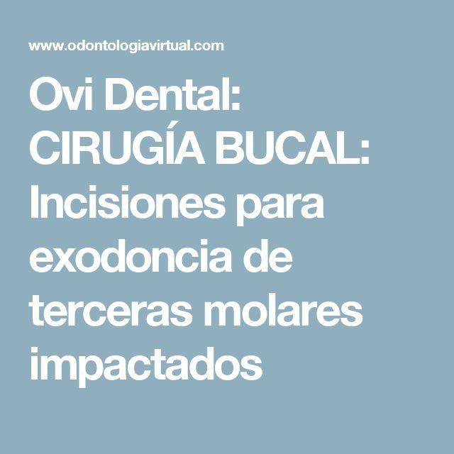 Ovi Dental: CIRUGÍA BUCAL: Incisiones para exodoncia de terceras molares impactados