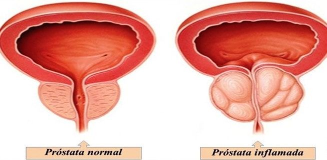 suplementos de próstata man de