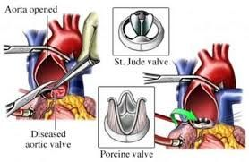 The mitral valve repair surgery is performed to fix the condition called as mitral regurgitation that is the leaking of the mitral valve which can cause issues like heart failure.   http://www.indiacardiacsurgerysite.com/blog/health-care/affordable-robotic-mitral-valve-repair-in-india-with-india-cardiac-surgery-site/