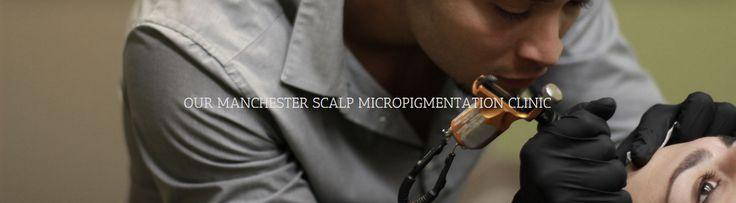Manchester scalp micropigmentation treatment centre