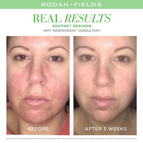 """I am shocked and amazed at how this seriously soothes my skin. I can't wait to watch my skin visibly improve!"" Amy, Rodan + Fields Consultant.  www.KeepCalmAndLoveYourSkin.com"