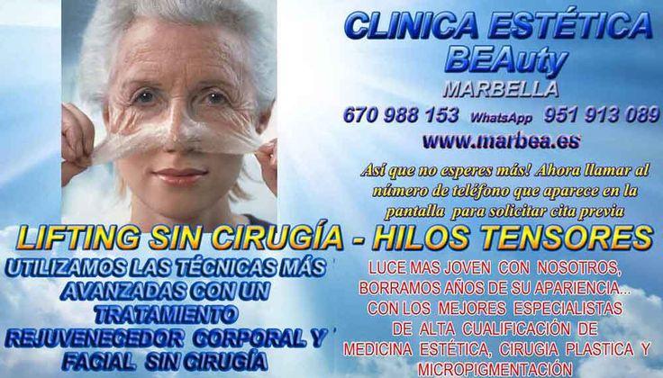 RADIOFRECUENCIA FACIAL Y CORPORAL MARBELLA ,  http://www.marbea.es/ QUE ES RADIOFRECUENCIA FACIAL MARBELLA , RADIOFRECUENCIA CORPORAL MARBELLA , CELULITIS ESTETICA MARBELLA , ESTETICA HOMBRES MARBELLA , CENTROS DE MEDICINA ESTETICA CENTRO ESTÉTICO MARBELLA , ESTETICA FACIAL MARBELLA , REDUCCION DE MUSLOS SIN CIRUGIA MARBELLA , ESTETICA FACIAL SIN CIRUGIA MARBELLA , MESOTERAPIA EN MARBELLA , CELULITIS MESOTERAPIA MARBELLA , TRATAMIENTOS PARA LA CELULITIS Y FLACIDEZ MARBELLA ,