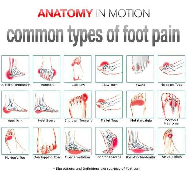 common reason why your feet hurt. Common types of #foot pain