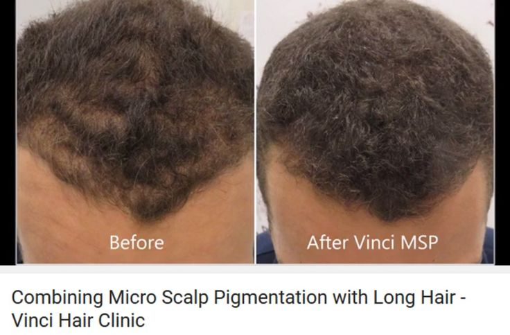 For micro scalp pigmentation to work with long hair the pigment needs to be able to blend with the natural surrounding hair. Arrange a free, no obligation consultation #hairloss #vincihair #SMP #MSP #scalppigmentation #pigmentation #micropigmentation #longhair