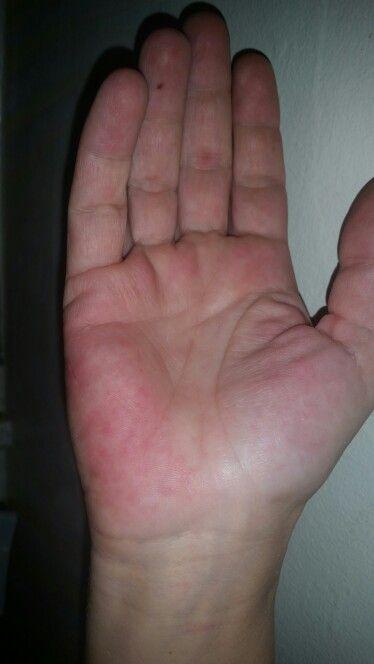 Lupus rash on hand